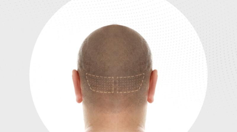 FUT-Haartranspllantation